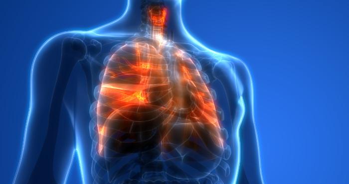 Illustration of Lung Inury